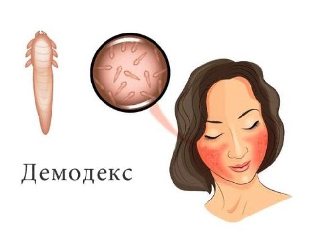 Демодекс